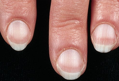 The Color Of Your Fingernails Reveals About Your Health