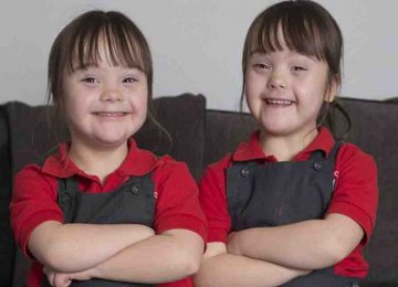 מקסים – לידת תאומים בעלי תסמונת דאון מתרחשת רק פעם אחת במליון המשפחה הזו זכתה