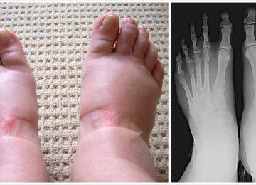 נפיחות ברגליים היא סימן מקדים ל-9 מחלות מוכרות ומסוכנות – אסור להתעלם מהסימן הזה