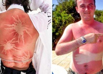 התמונות הבאות מציגות את השמש כאמן קעקועים רע ביותר