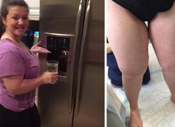 אף אחד לא מצליח להסביר מדוע היא עולה במשקל – עד שהרופאים עולים על תגלית מדהימה!