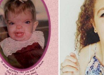 היא נולדה עם מחלה נדירה, אבל כך היא נראת היום אחרי הניתוחים הרבים שעברה!