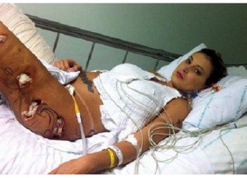 5 נפגעים מניתוחים פלסטיים שהחיים שלהם לעולם לא יהיו כמו קודם!
