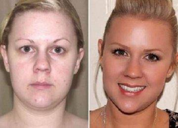 """היא הורידה כמעט 13 ק""""ג ונפטרה מבעיות העור שלה, רק כי הפסיקה לאכול את זה!"""