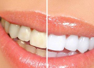 כך תלבינו את השיניים בפחות מ 5 דק'