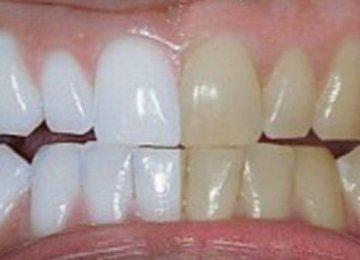 הוא ערבב שני מרכיבים ומרח אותם על השיניים. מה זה עשה? אני בטוח מנסה את זה!