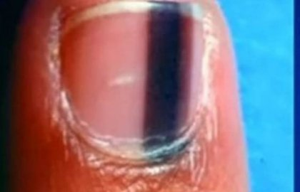 לאם הופיע סימן שחור ומוזר מתחת לציפורן – כאשר הרופא ראה את זה הוא הודיע לה את הגרוע מכל