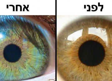 7 דברים מעניינים שיכולים לשנות את צבע העיניים שלכם