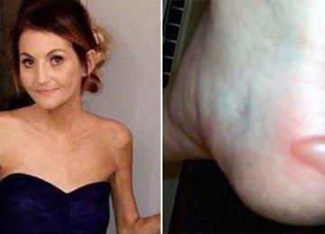 היא קיבלה שלפוחית בגלל נעלי העקב – כעת הרופאים אומרים שצריך לכרות את הרגל