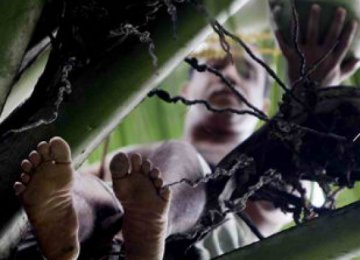 הכירו את הבן אדם בעל 24 האצבעות