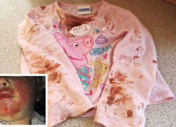 הרופאים לא הבינו מה קרה לילדה עד שהאם נזכרה במשהו שקרה 8 חודשים קודם לכן – כעת היא רק רוצה להזהיר הורים אחרים